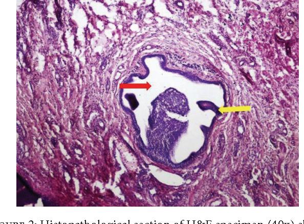 ductal papilloma of salivary gland le papillomavirus humain