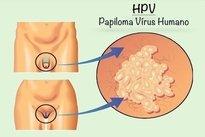 papillomavirus was ist das)