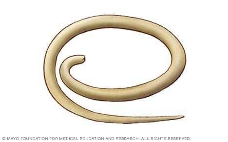 parasitos oxiuros causas