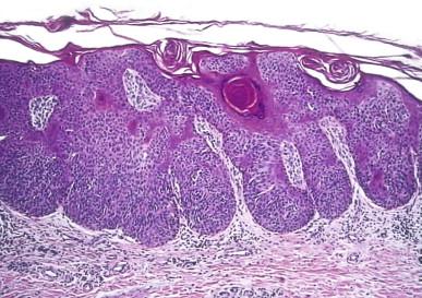 squamous papilloma vs seborrheic keratosis