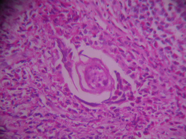 schistosomiasis rectal biopsy)