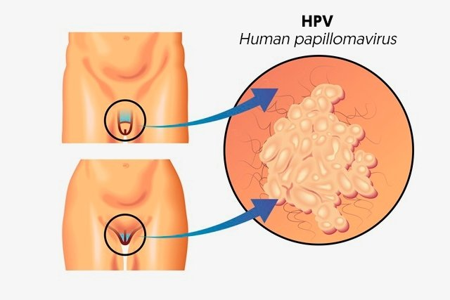 hpv virus on vocal cords nhs