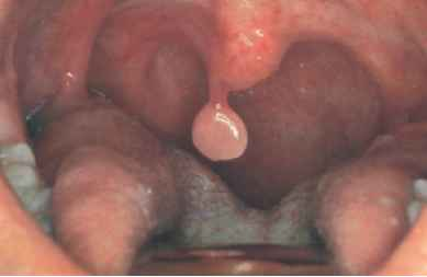 removing papilloma from uvula)