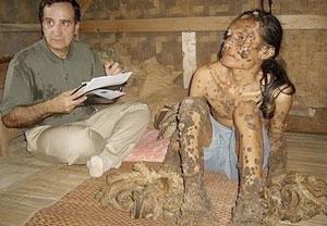 human papillomavirus adalah)