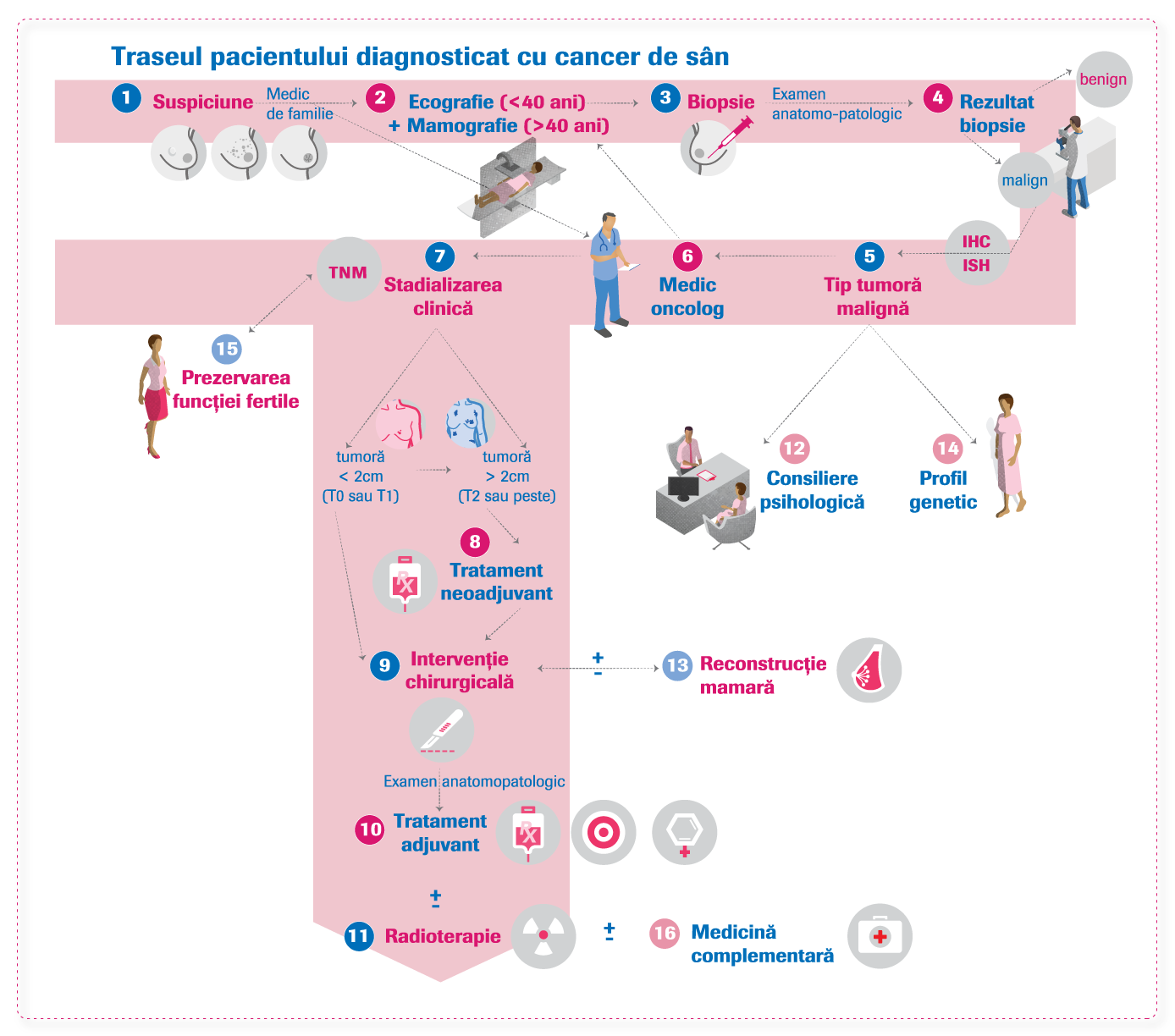 papilom intraductal tratament