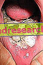 cancerul gurii