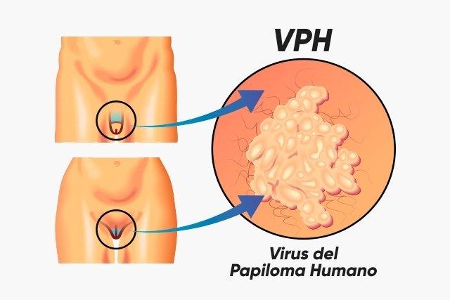 virus del papiloma humano en hombres y mujeres)