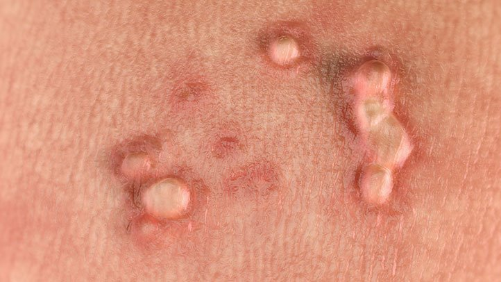 human papillomavirus infection warts