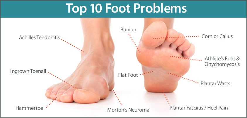 warts foot problems