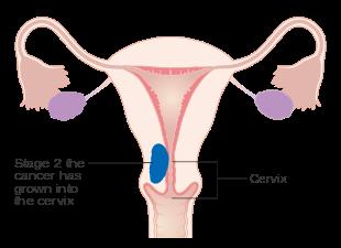 uterine cancer in hindi