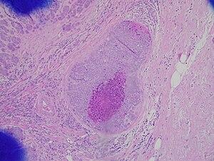 papiloma intraductal de mama tratamento