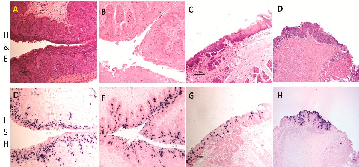 papillomaviridae (papilomas) hpv in the eye