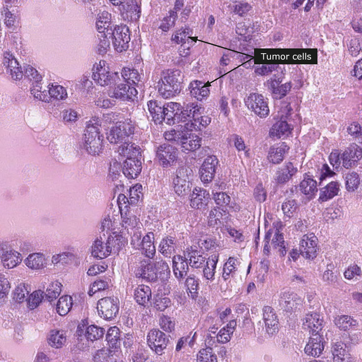 papillary thyroid cancer gallbladder