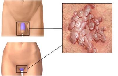 hpv tunete ferfiaknal cancerul la rinichi doare