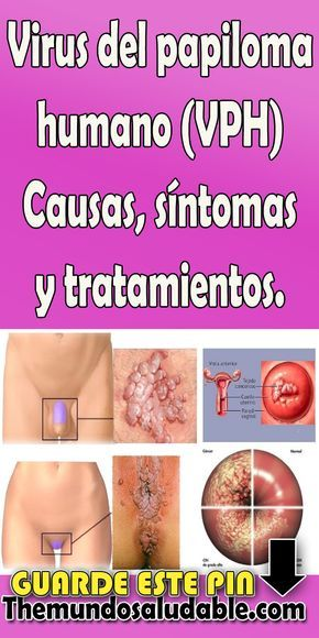 virus del papiloma humano sintomas y causas