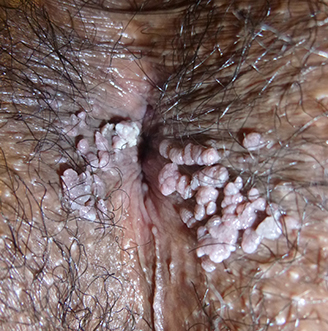 traitement azote papillomavirus)