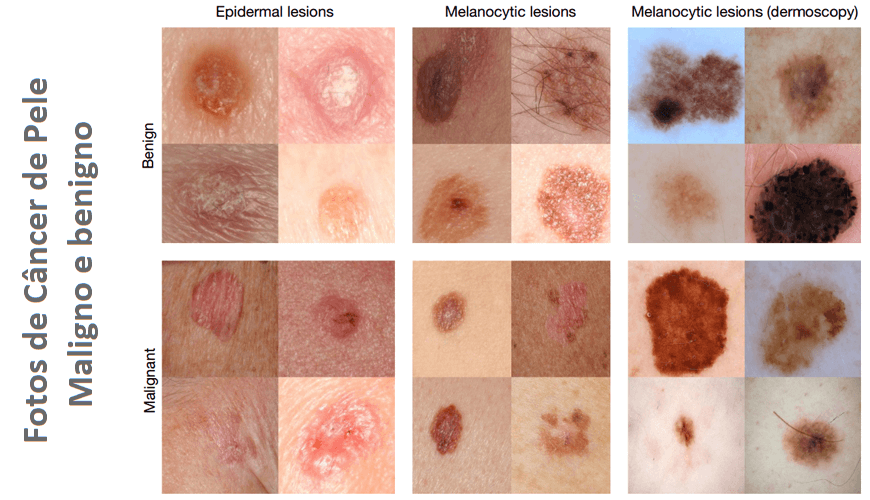 Cum arata cancerul de piele in toate formele sale