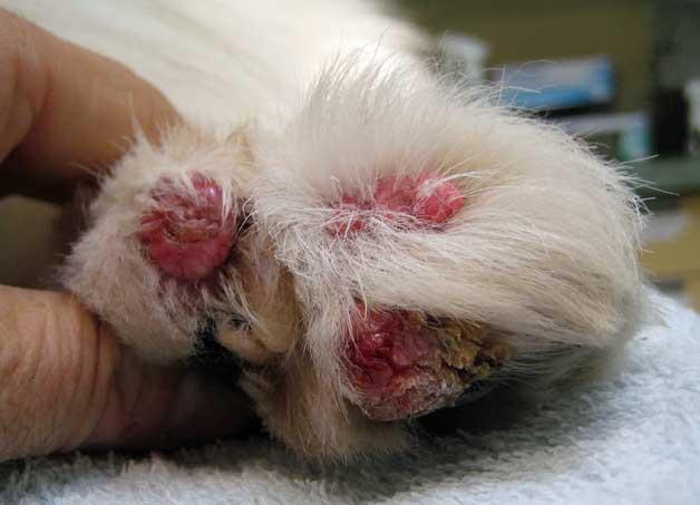 papilloma removal foot
