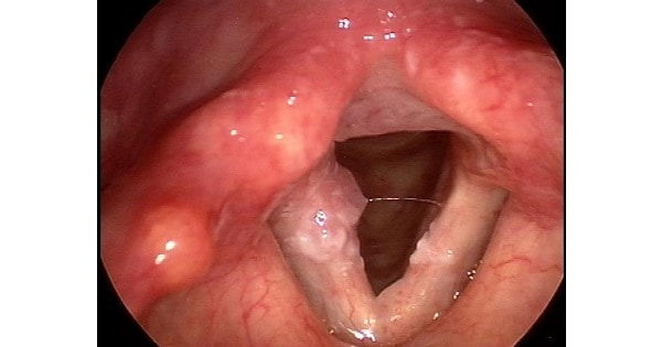 laryngeal papillomatosis in newborns