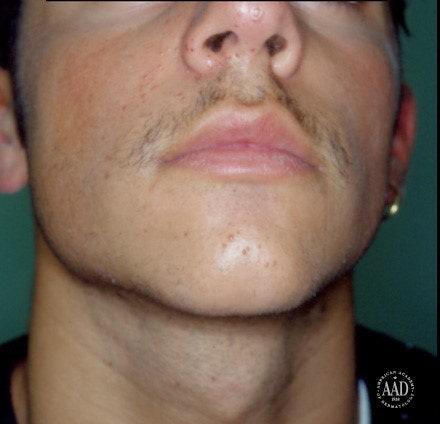 facial warts hpv type papiloma humano tiene curacion