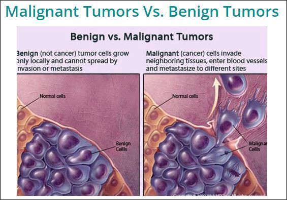 breast cancer benign and malignant)
