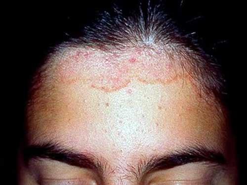 dermatita seboreica vaccino hpv trieste