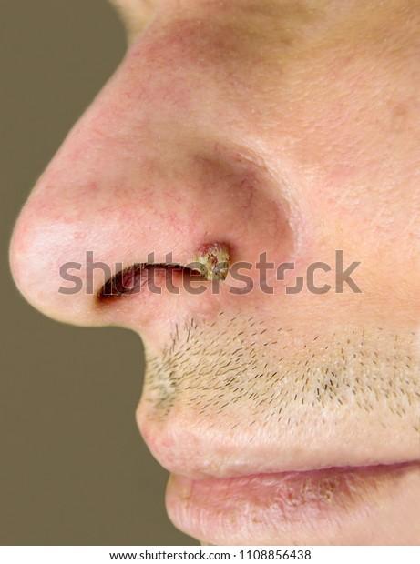 papillomas in nose)
