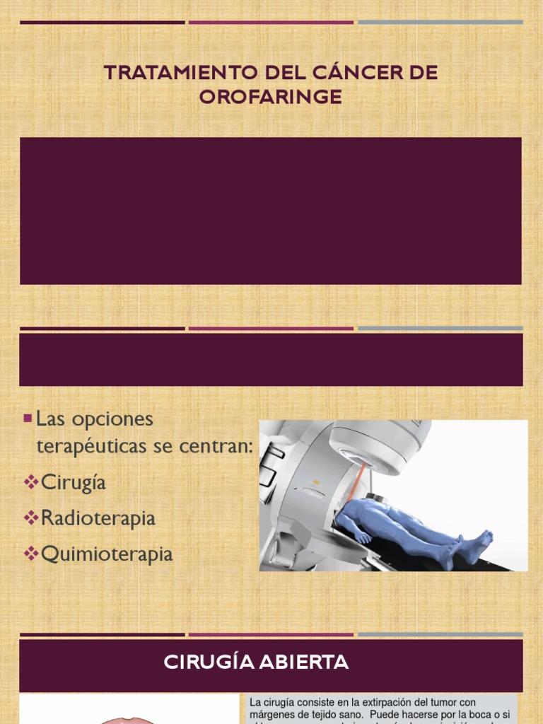 cancer de orofaringe tratamiento)