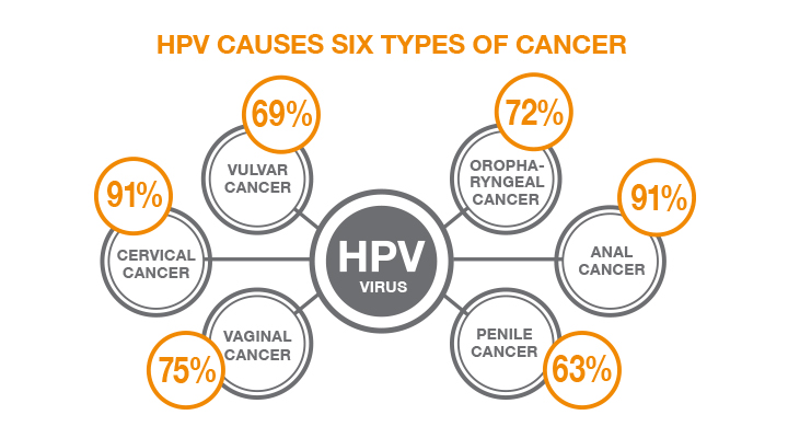hpv causes what type of cancer)