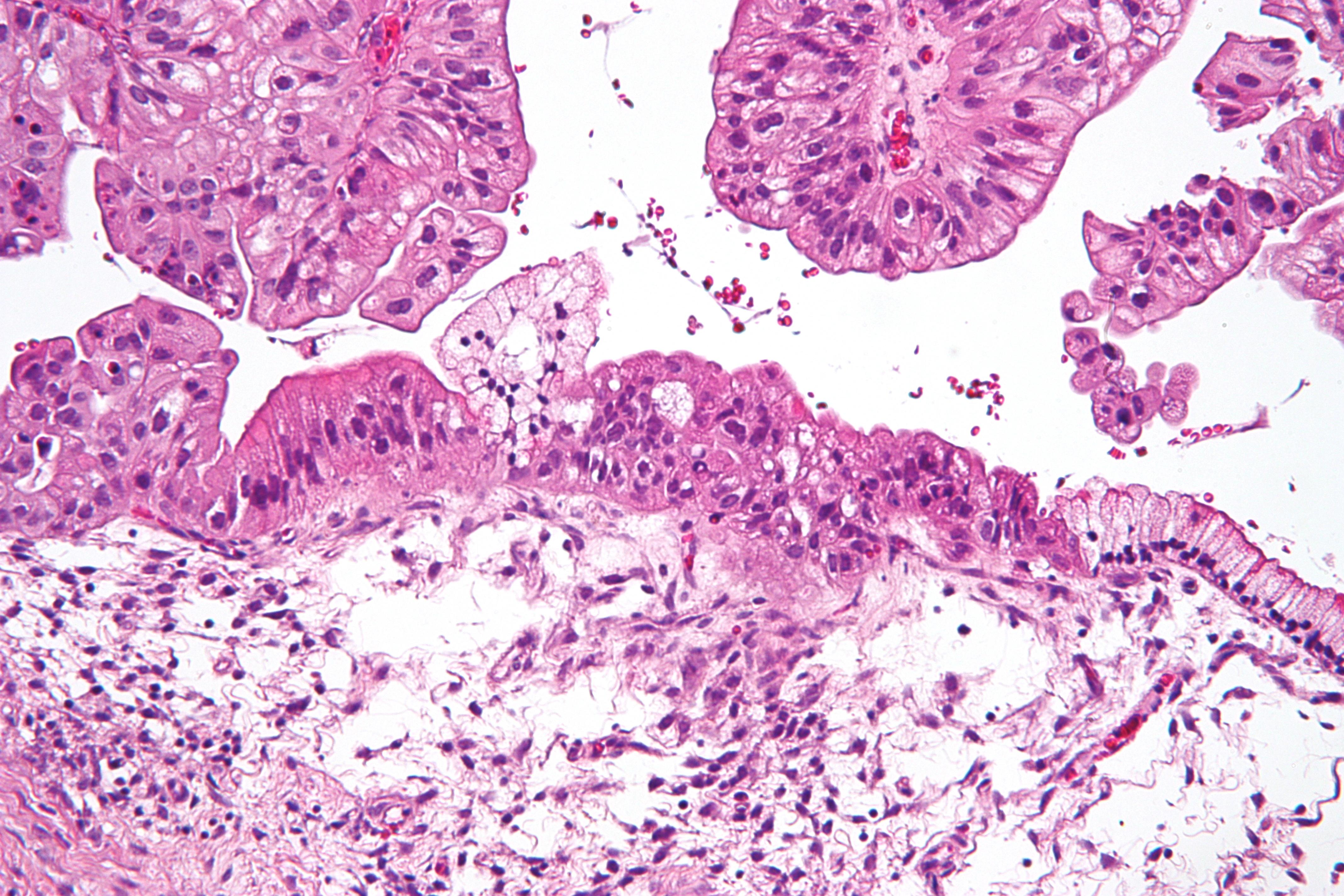 ovarian cancer under 25)