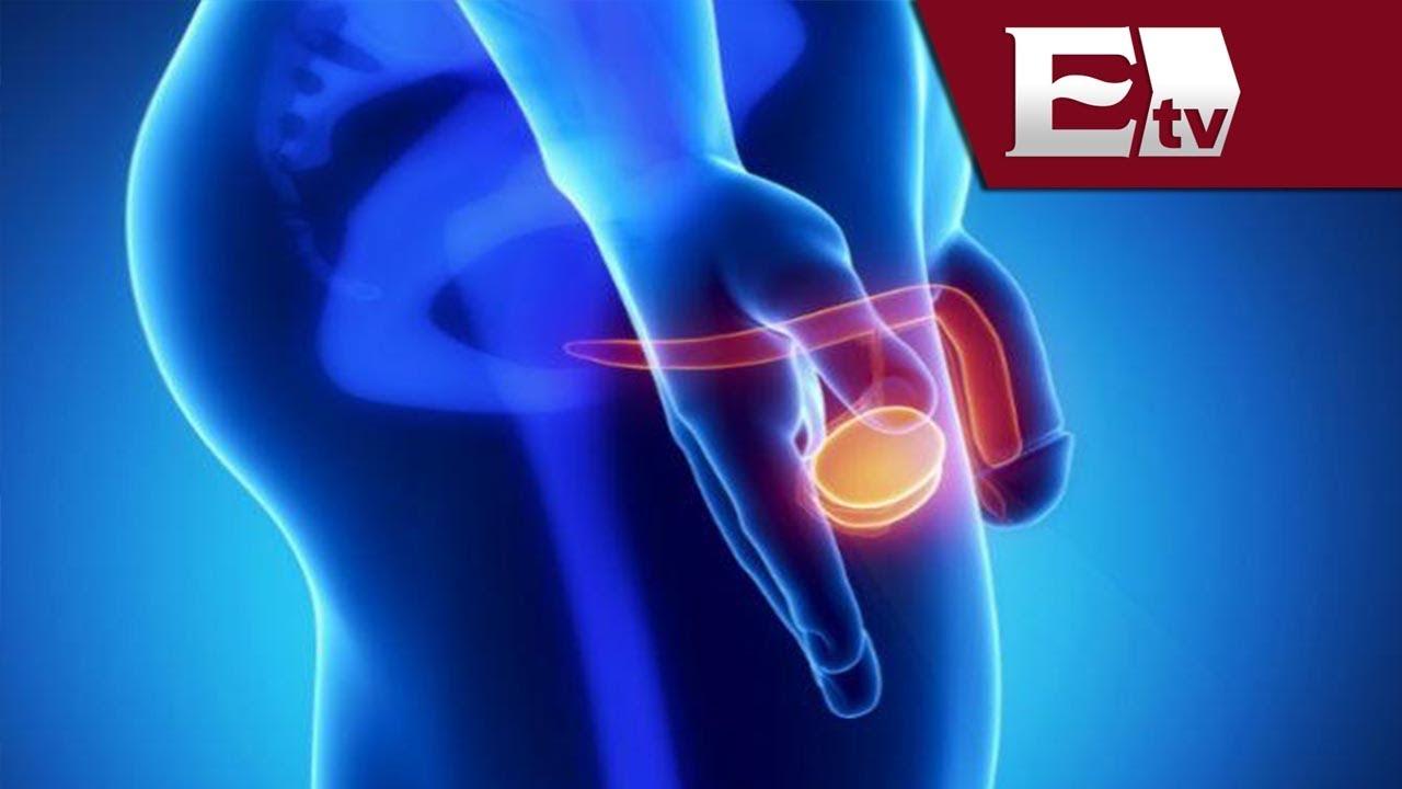 cancer de prostata contagia a la mujer)