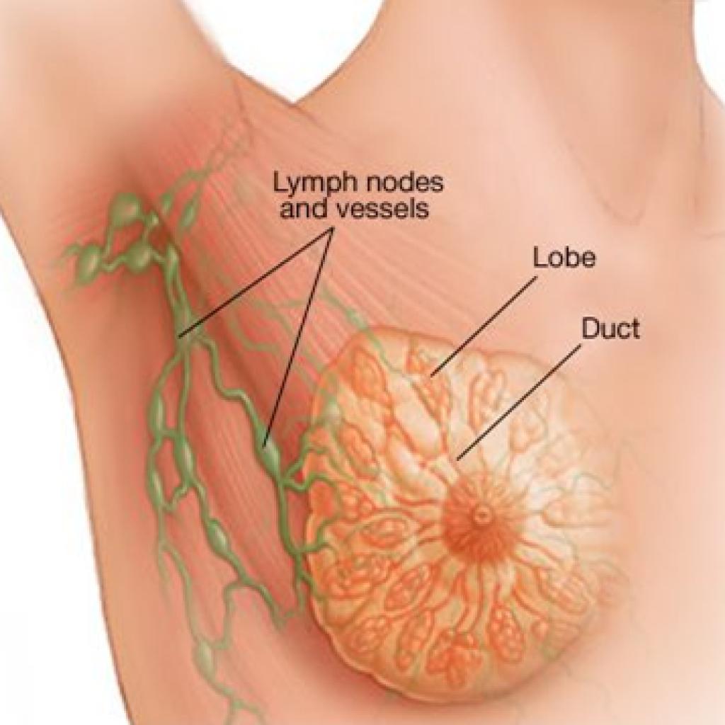 cancerul la san stadiul 4)