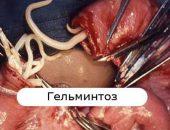 enterobiasis kezelese
