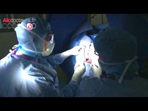 papillomavirus bruler au laser