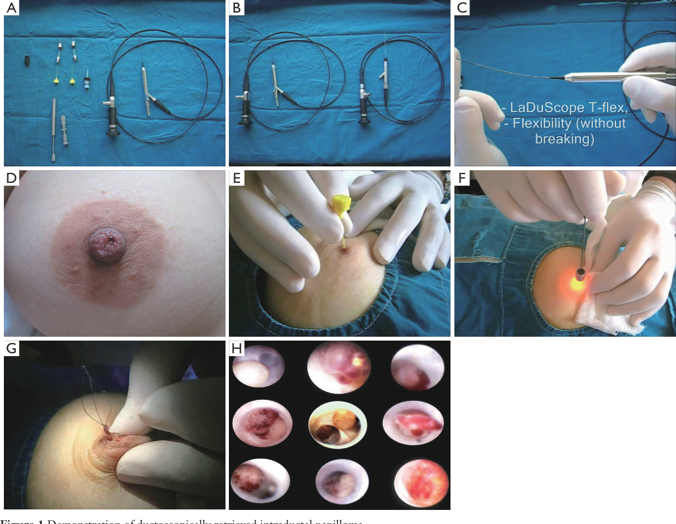 papilloma in breast surgery)