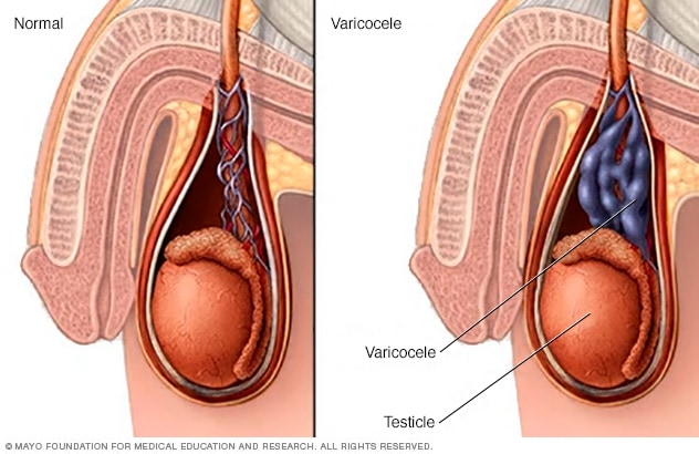 cancer testicular sintomas)