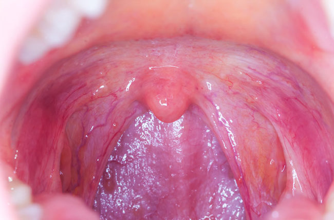 human papilloma mouth)