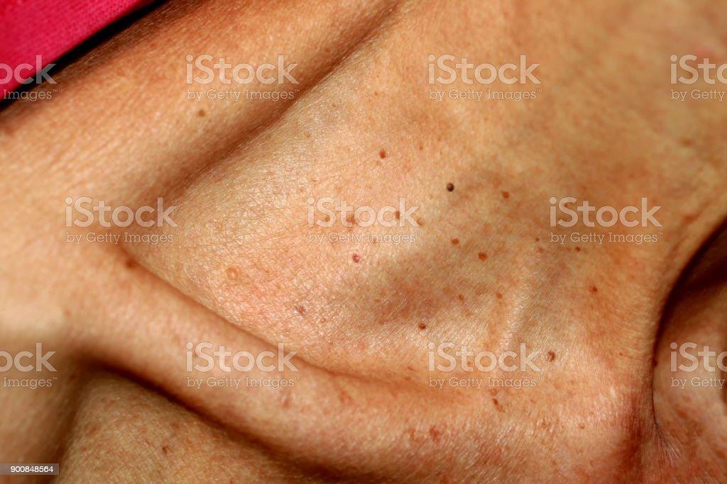papiloma en la piel imagenes)