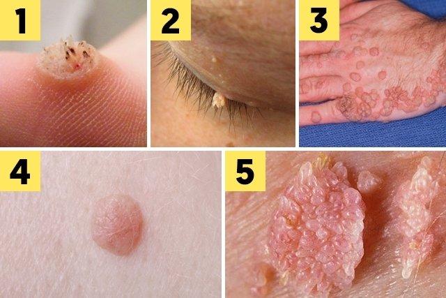 hpv genital verruga