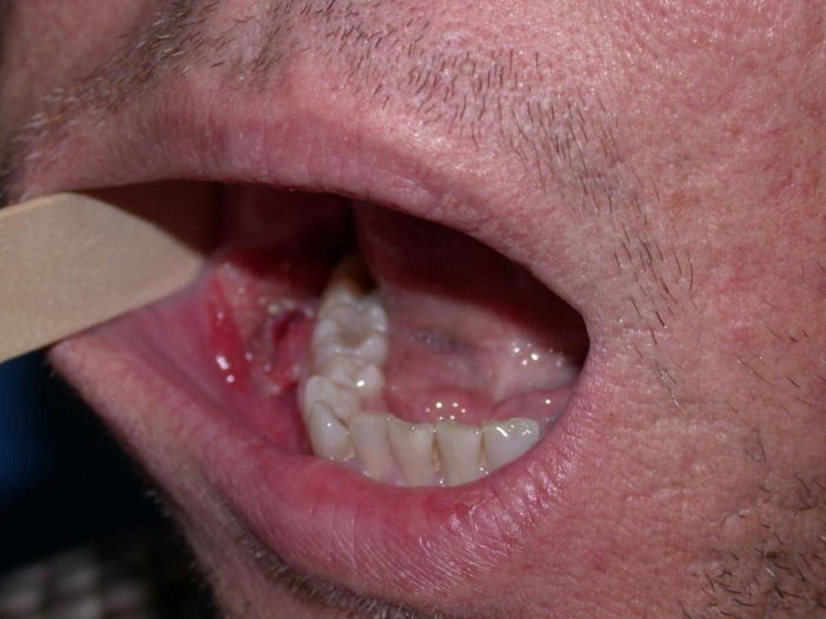 viral papilloma on tongue)