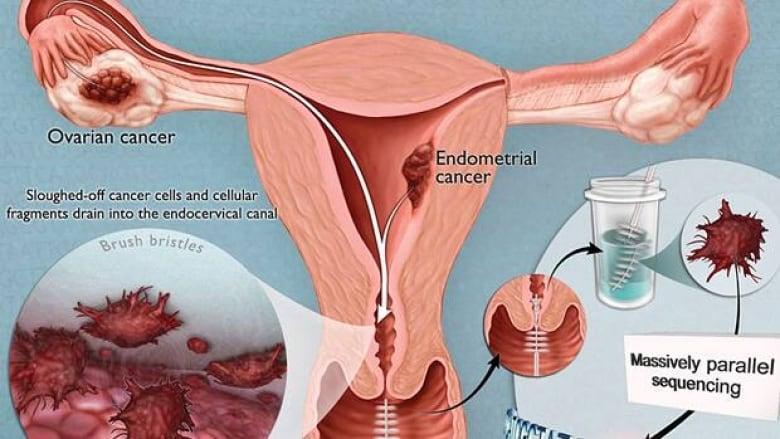 endometrial cancer test