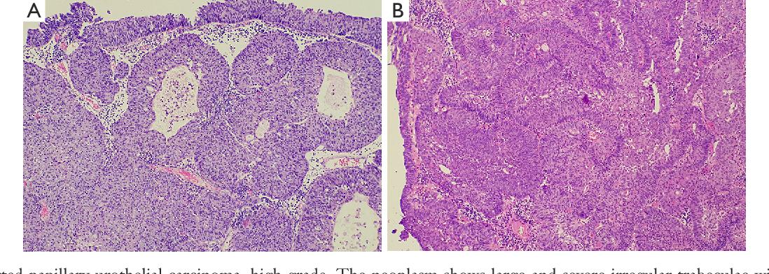 bladder inverted papilloma follow up o que e human papillomavirus