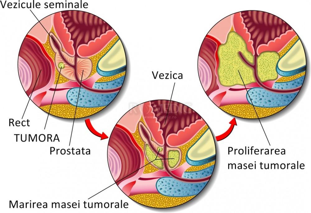 cancer de prostata stadii)