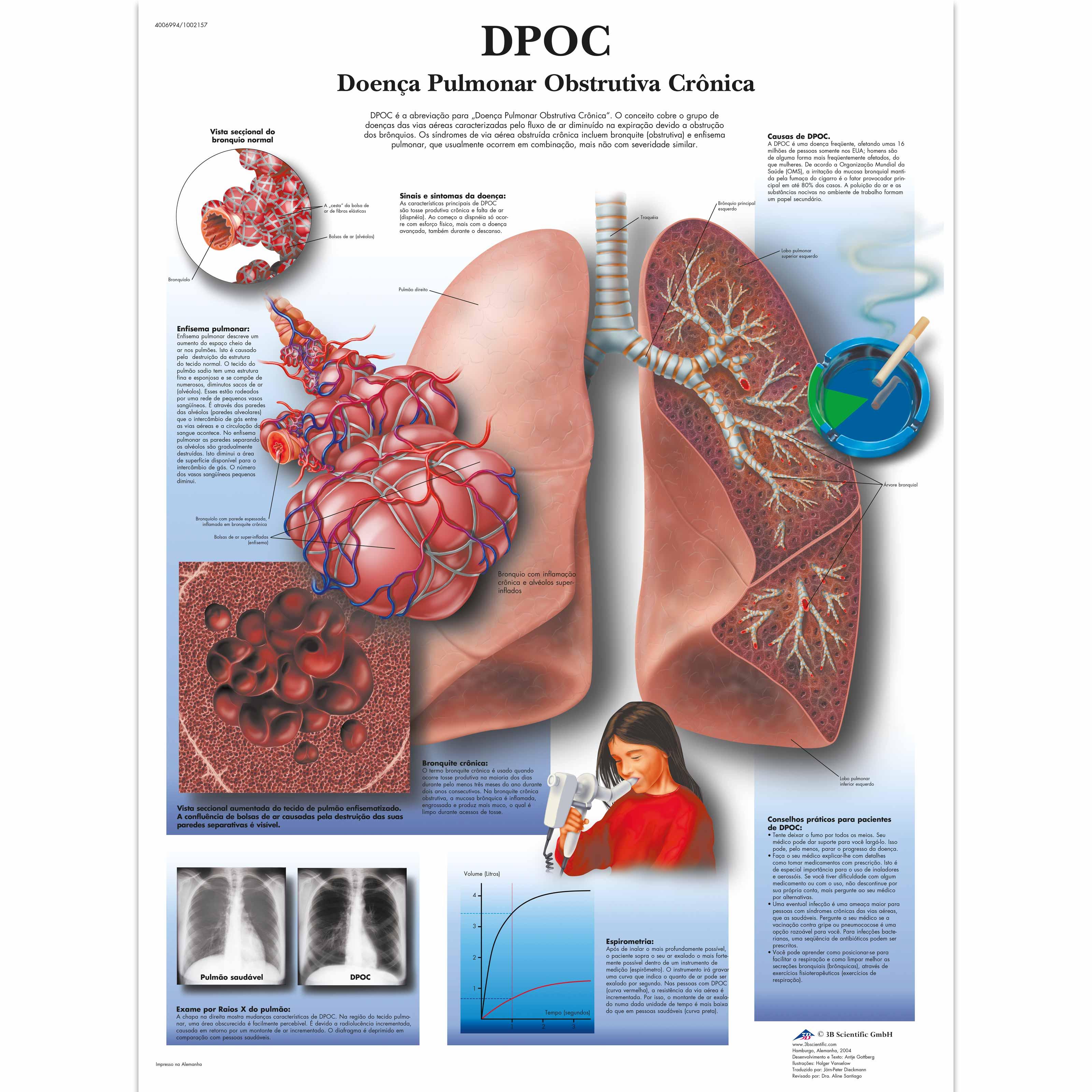 cancer pulmonar 3 b