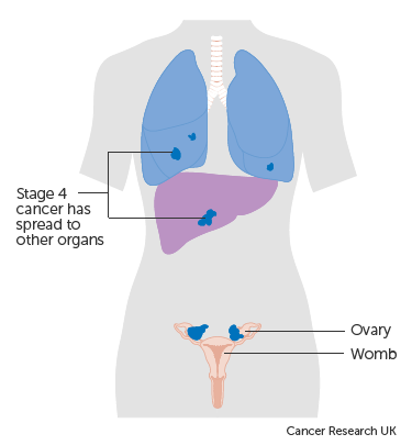 ovarian cancer final stages)