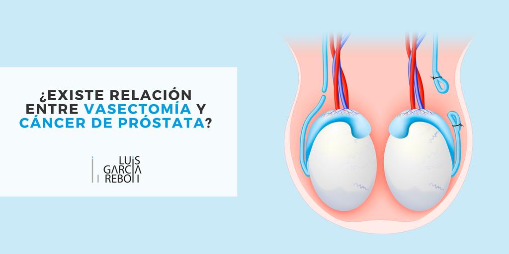 Creste vasectomia riscul de cancer la prostata?