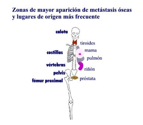 Calendula pentru cancer și adenom de prostată