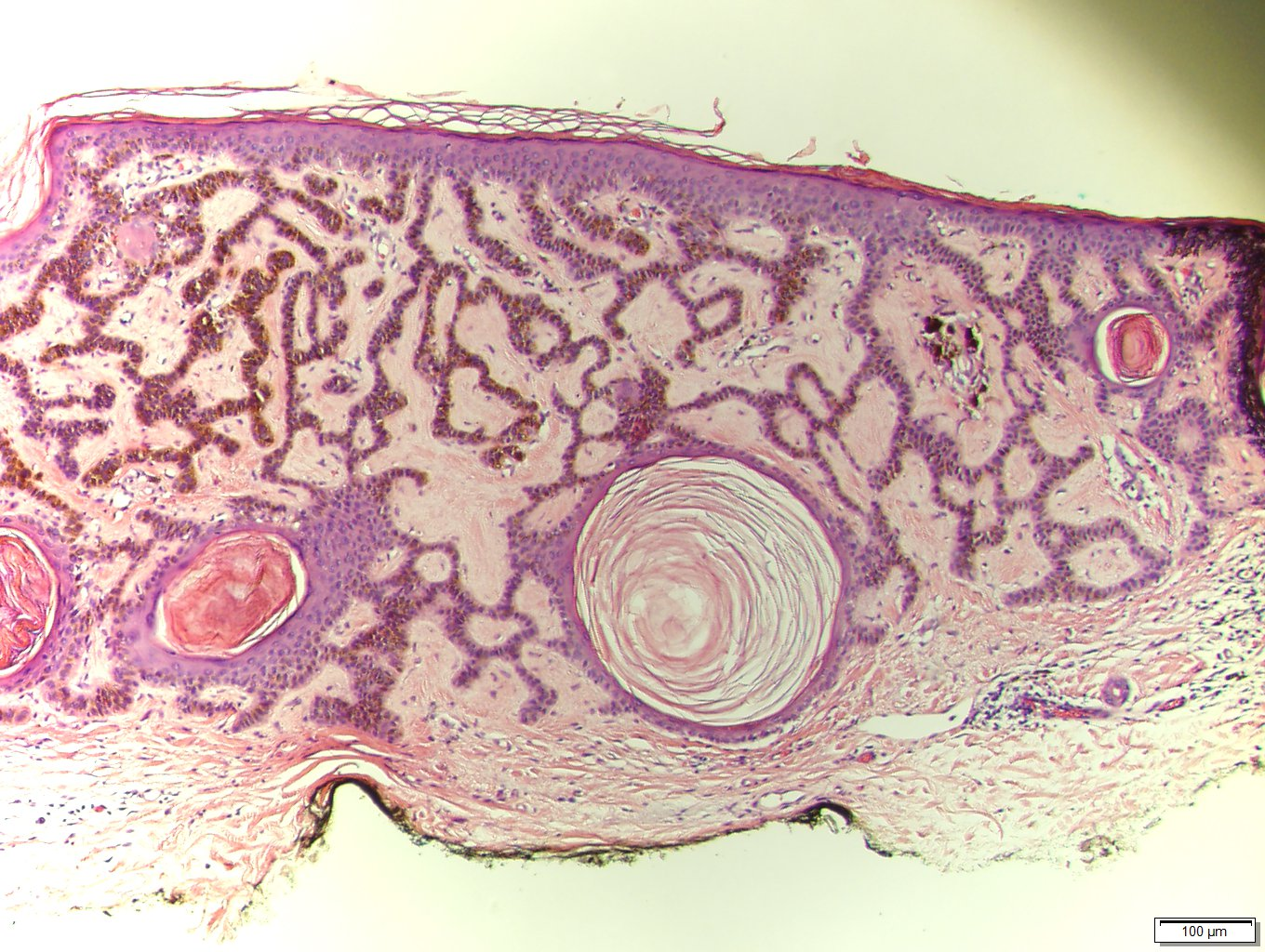 squamous papilloma pathology outlines skin