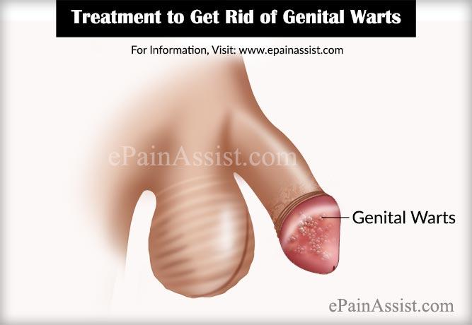 hpv warts get rid of cura de slabire cu usturoi si lamaie