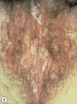 condyloma acuminata artinya